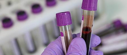 Blood Viles in Lab
